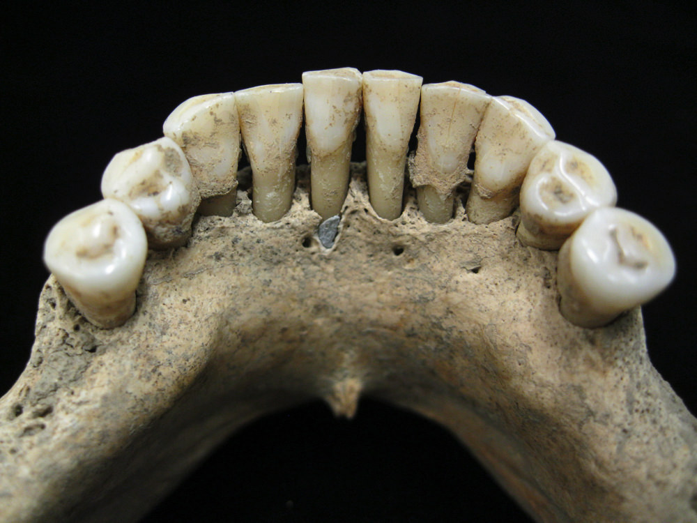 6fd7babf6e3c0 Lapis lazuli pigment entrapped within the dental calculus on the lower jaw  of a medieval woman.