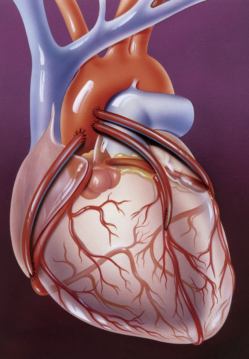 The passion for procedures to fix ailing arteries and hearts may be ...