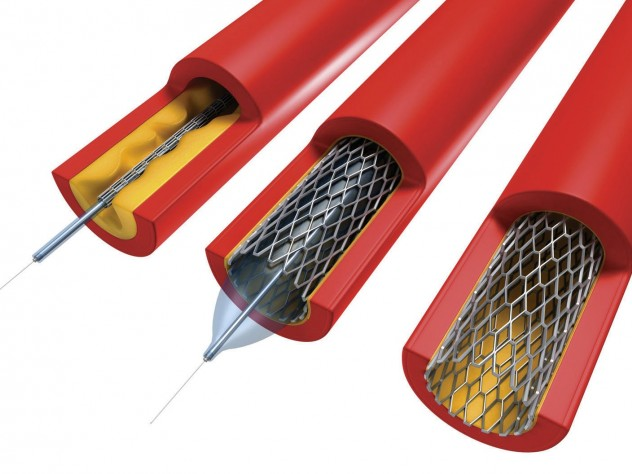 In angioplasty, a catheter sheathed by a deflated balloon is inserted (left) into an artery (red) clogged with plaque (yellow). When inflated (center), the balloon crushes the plaque into the walls of the artery and expands the wire mesh stent. The balloon is then deflated and removed, leaving the stent in place (right) to hold the artery open.