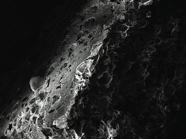 A scanning electron microscope image reveals the porous nature of a bioengineered disk where immune cells can reside and be programmed for vaccination.