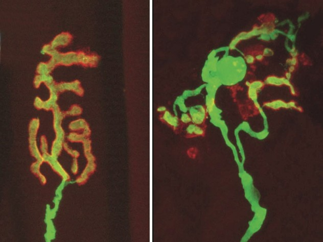 Exercise and caloric restriction both mitigate the degradation of synapses that occurs with age. In the healthy synapse at left, the receiving end, or muscle receptor (red), and the transmitting end (yellow), attached to a nerve, overlay each other perfectly. With age, the synapse literally falls apart, as shown at right.