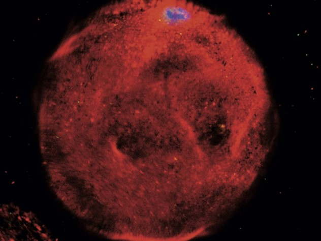 A single, fat cell (red), its nucleus at top (blue)—the subject of new research on obesity