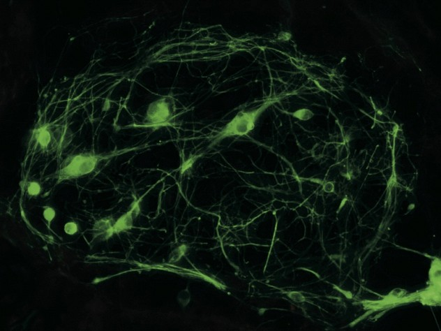 Motor neurons produced from reprogrammed cells enable researchers to study ALS in a petri dish.
