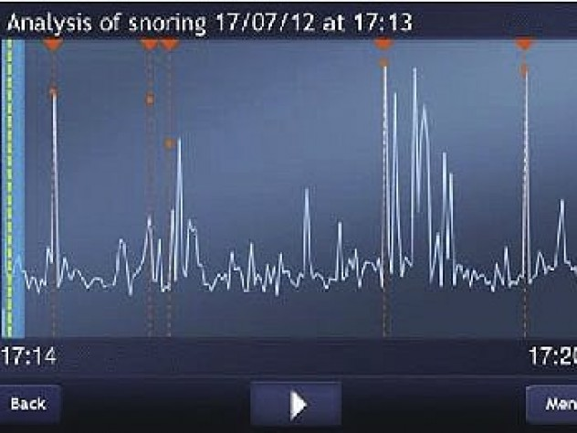 The app, developed by researchers in France, already monitors the sleep patterns of more than 600,000 people.