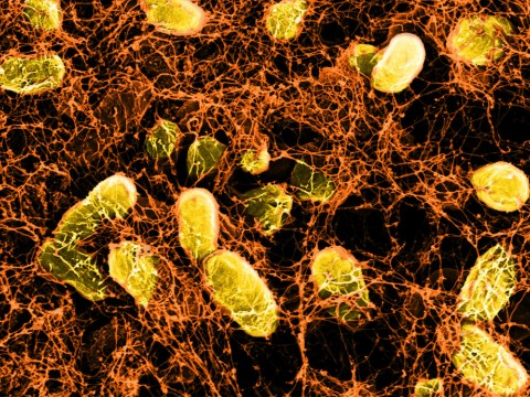 A network of curli fibers (produced by genetically altered E. coli bacteria) can bind to intestinal surfaces, where it acts like a Band-Aid, and can even deliver probiotic therapies.